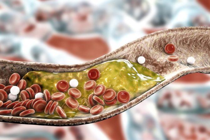 alimentos que debes evitar si tienes el colesterol alto