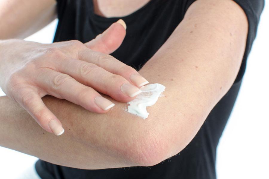 Bicarbonato de sodio para piquetes de mosquitos