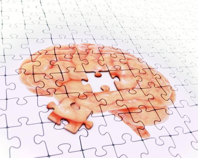 datos sobre el alzheimer