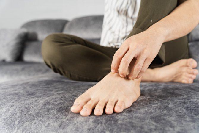 remedios naturales para quitar el pie de atleta